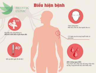 Biểu hiện của bệnh sốt xuất huyết