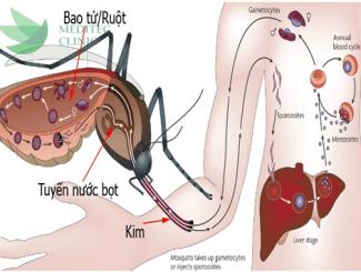 Triệu chứng và cách chữa bệnh sốt xuất huyết
