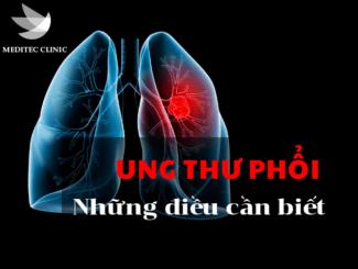 ung-thu-phoi-phong-kham-meditec-52-ba-trieu-1