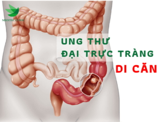 ung-thu-dai-truc-trang-di-can-meitec-52-ba-trieu-1