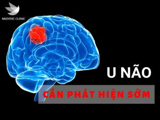 u-nao-ung-thu-nao-meditec-52-ba-trieu-1